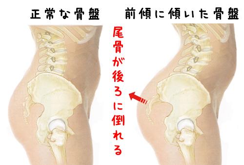 尾骨の痛み